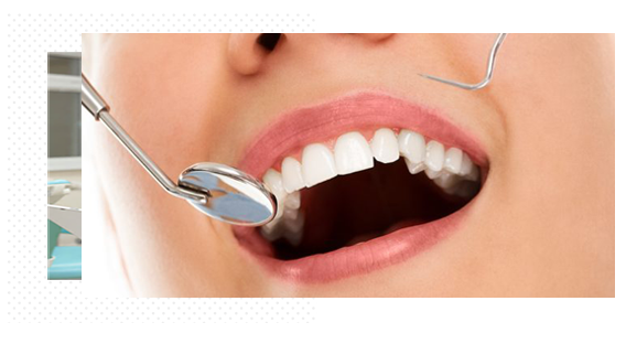 Teeth Whitening Hamilton